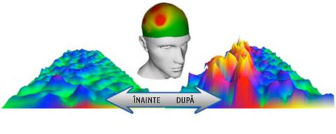 Modificarea activităţii cerebrale