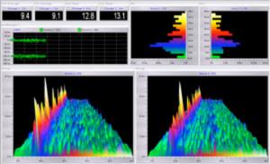 Cercetări din domeniul neurologiei (EEG)
