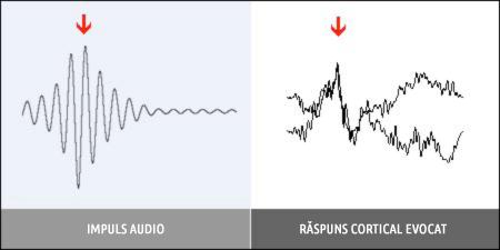 Impuls audio - Răspuns Cortical Evocat